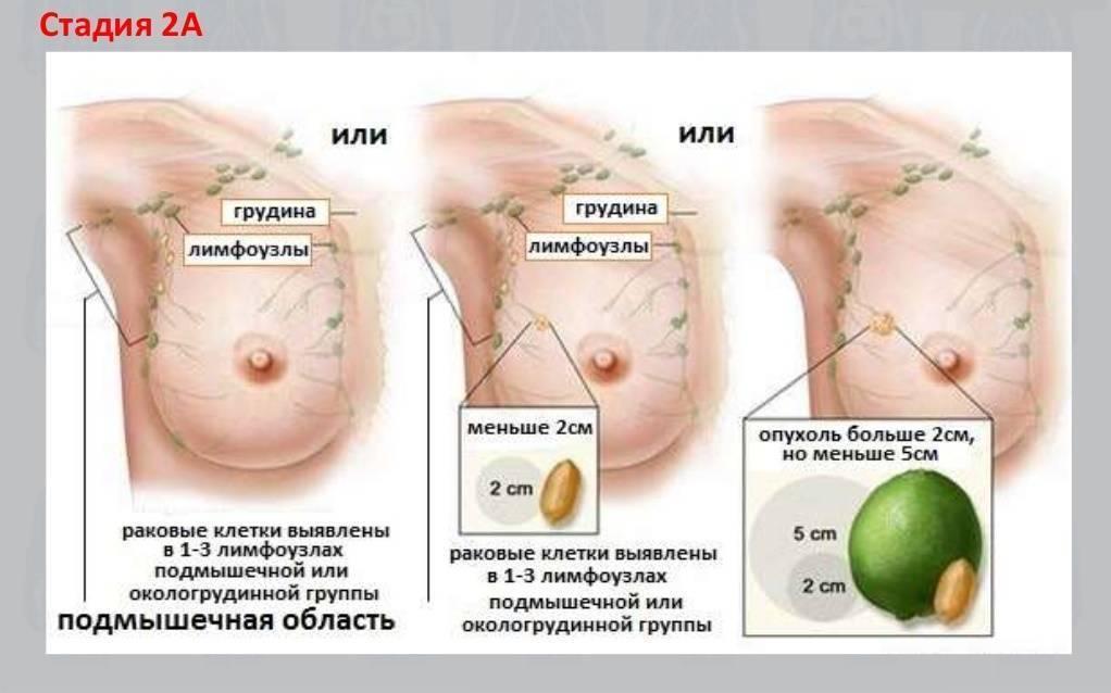 Рак молочной железы: причины, признаки, как развивается, диагностика, как лечить