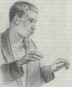 Кататоническая шизофрения — википедия с видео // wiki 2