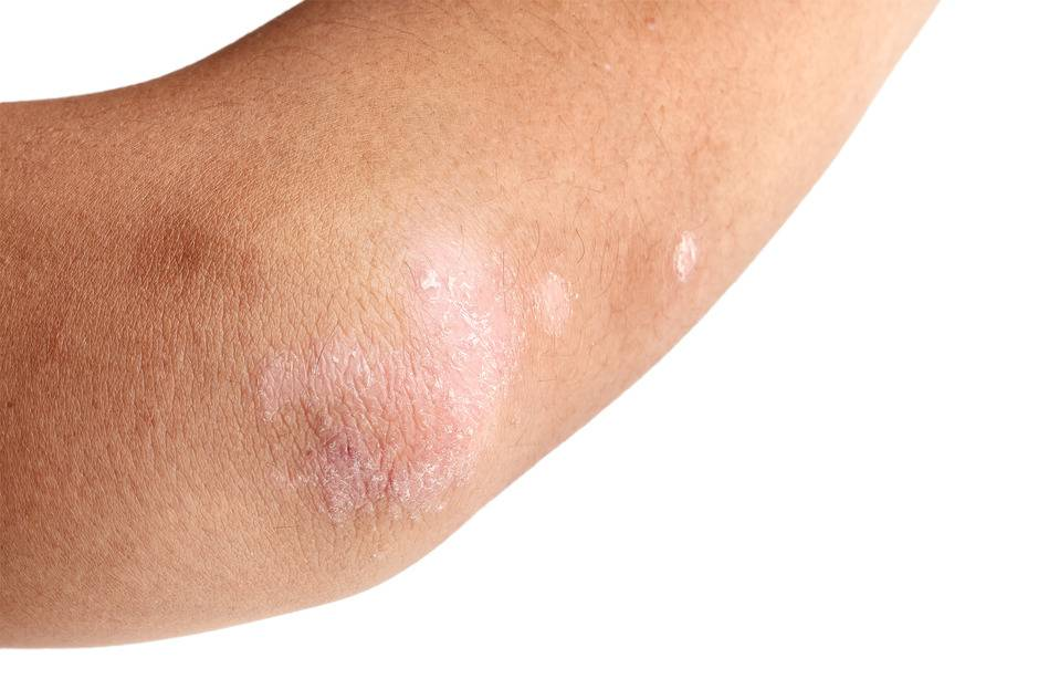 дерматит в локтевых сгибах