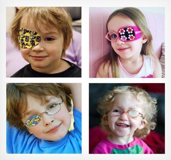 синдром ленивого глаза у детей