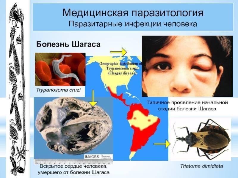 Болезнь шагаса или американский трипаносомоз симптомы