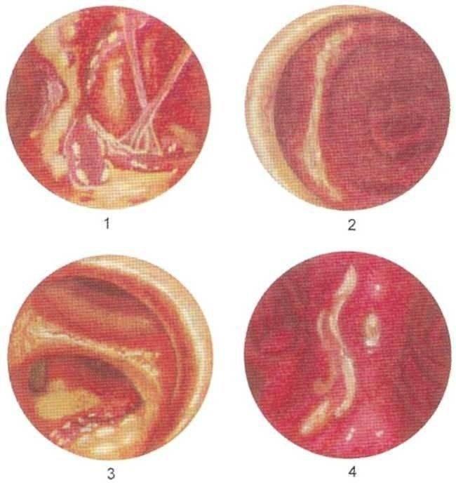 заболевания трахеи