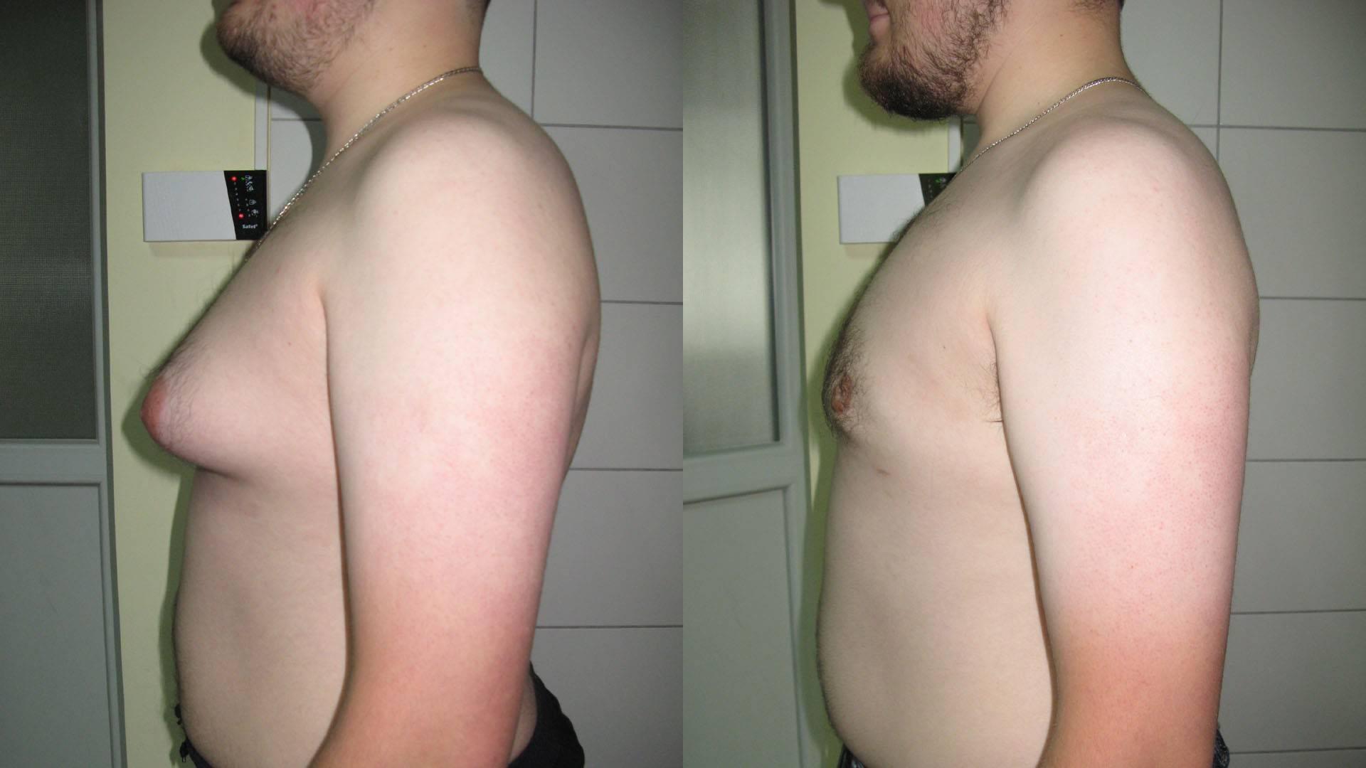 Мастопатия молочной железы лечение у мужчин