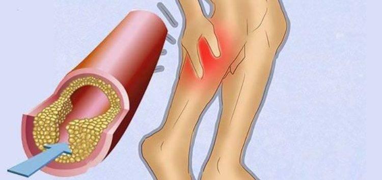 Атеросклероз нижних конечностей: симптомы, лечение и профилактика