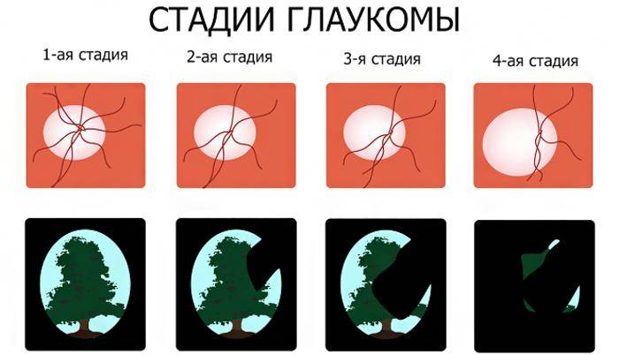 Глаукома первичная открытоугольная. клинические рекомендации.