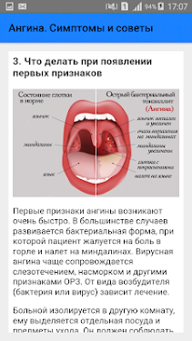 ангина вирусная или бактериальная