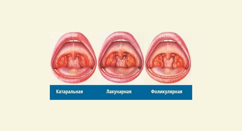 Фолликулярная ангина: причины, симптомы, лечение    фолликулярная ангина статус локалис