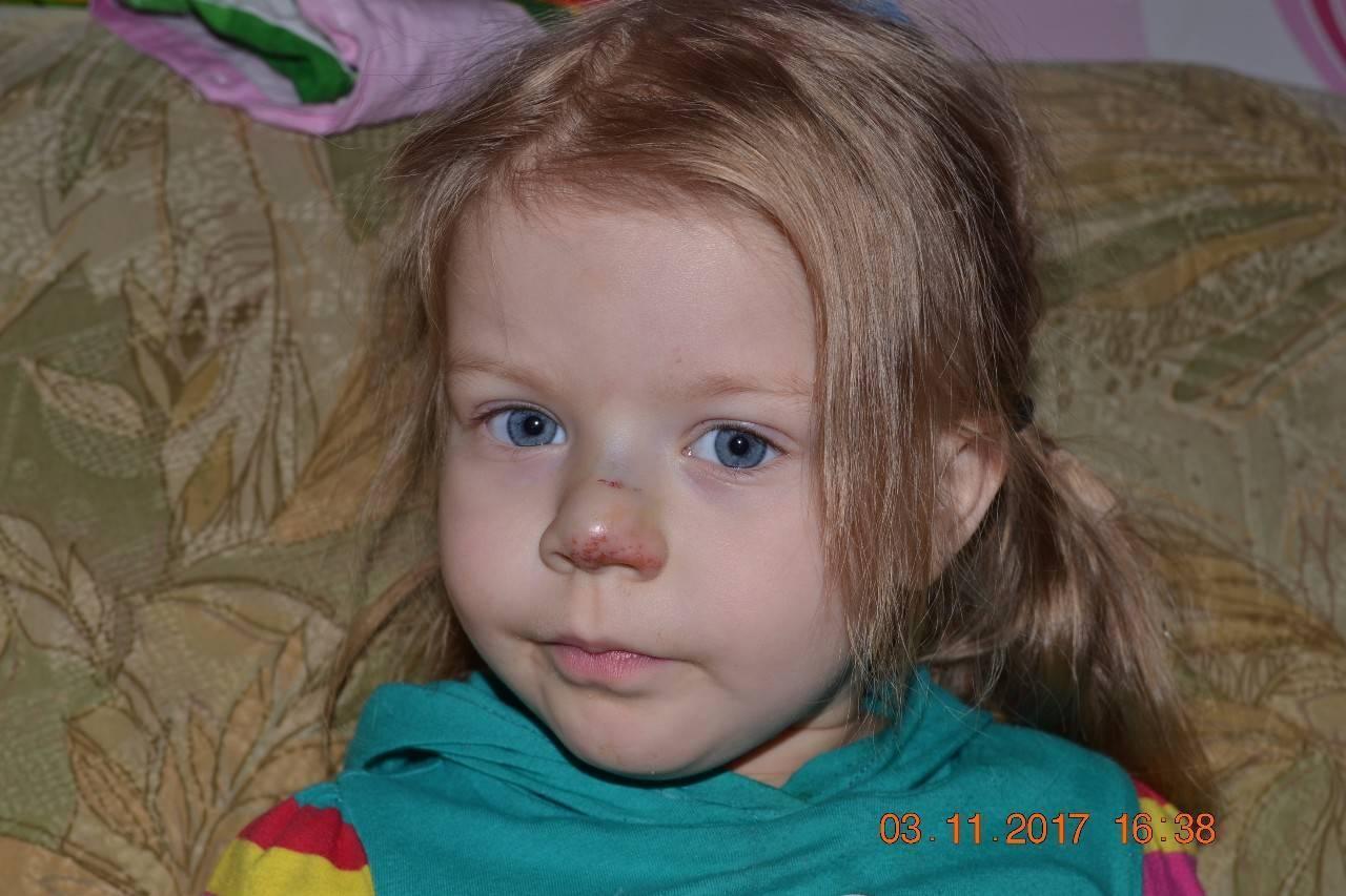 Как понять, что у ребенка сломан нос: симптомы и первая помощь