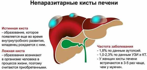 Особенности диеты при кисте печени