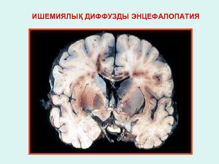 Посттравматическая энцефалопатия: причины, симптомы, диагноз, лечение