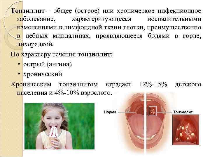 Ангина инкубационный период у взрослых