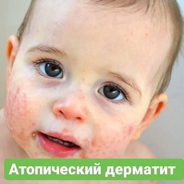 Про наш атопический дерматит