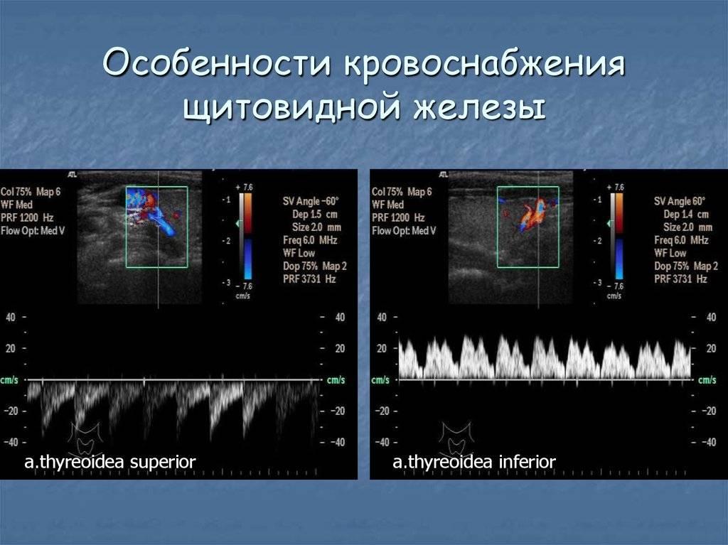 кровоток в щитовидной железе усилен