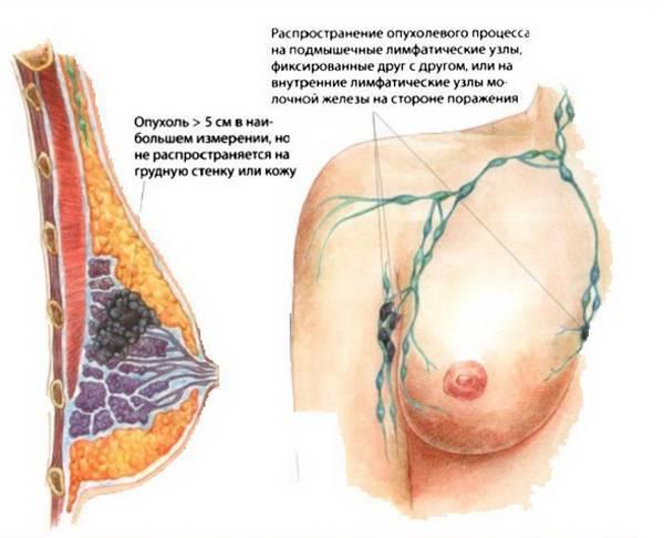 Почему у женщины набухает и болит грудь