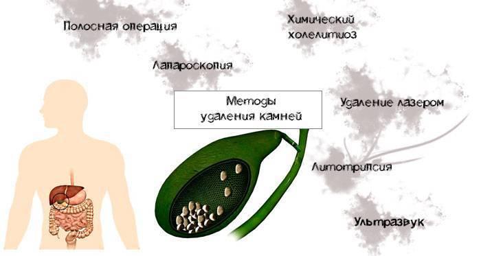 Желчнокаменная болезнь (калькулёзный холецистит). причины, симптомы, современная диагностика и эффективное лечение камней в желчном пузыре. :: polismed.com