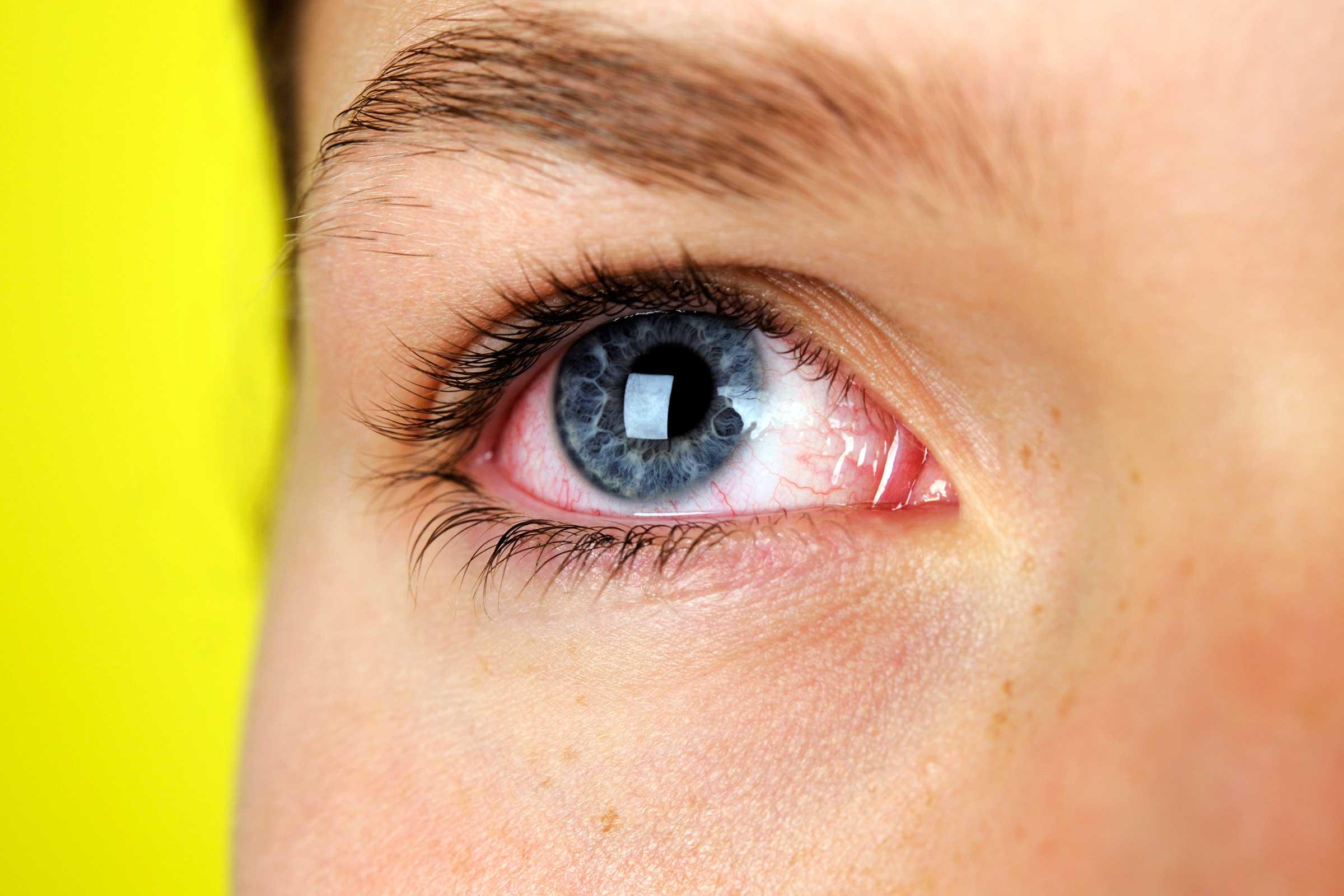 глаза красные слезятся