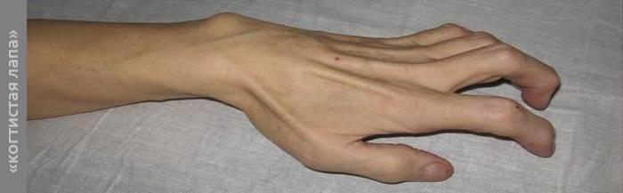Неврит локтевого нерва