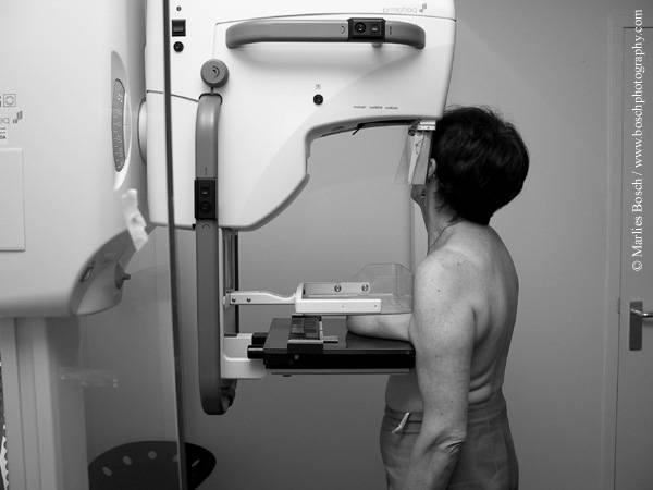 Со скольки лет можно делать маммограмму. с какого возраста можно делать маммографию молочных желез