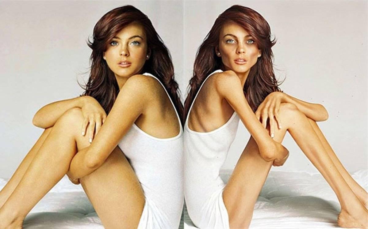 Как становятся анорексичками. реальные истории. фото до и после похудения