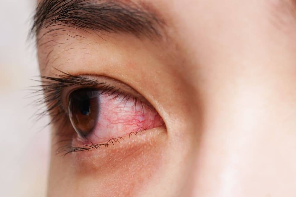 Почему после парилки болят глаза