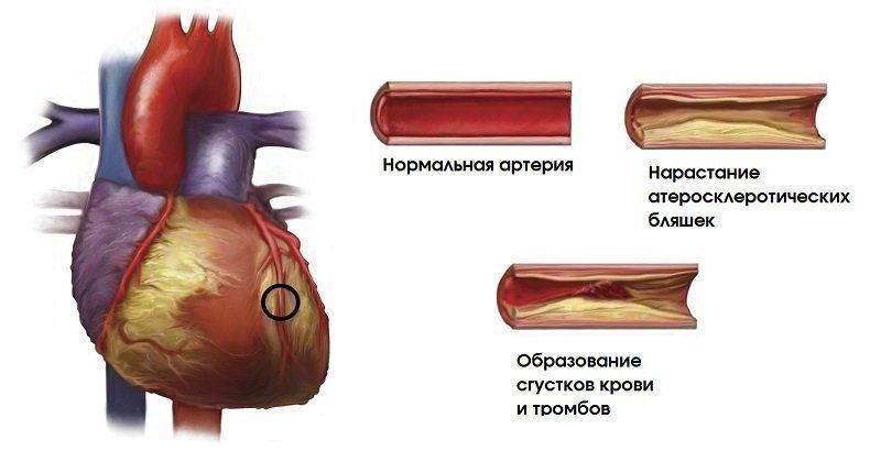 диагностика коронарного атеросклероза