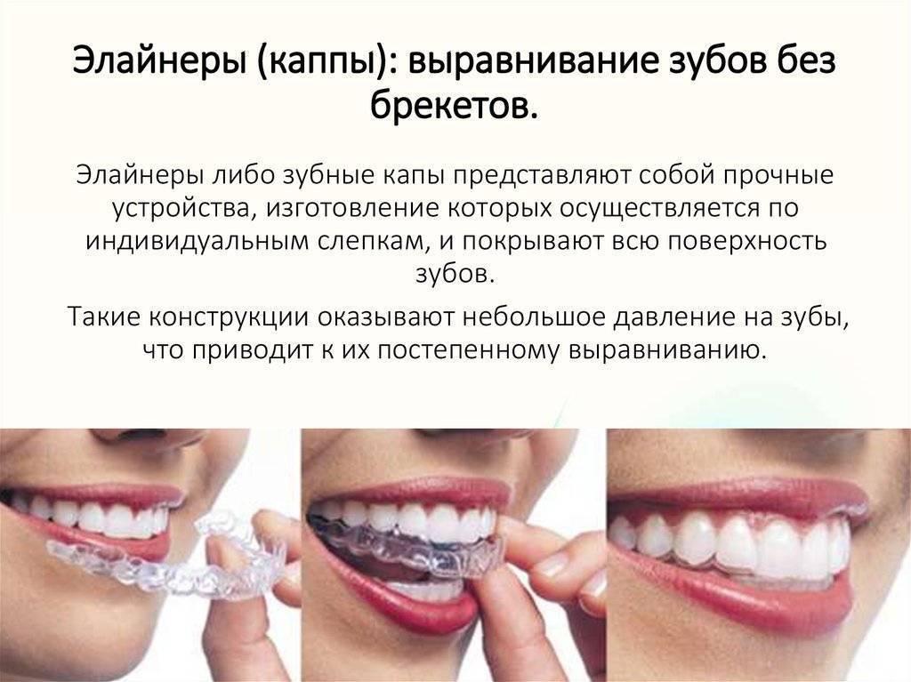 Могут ли зубы выровняться сами