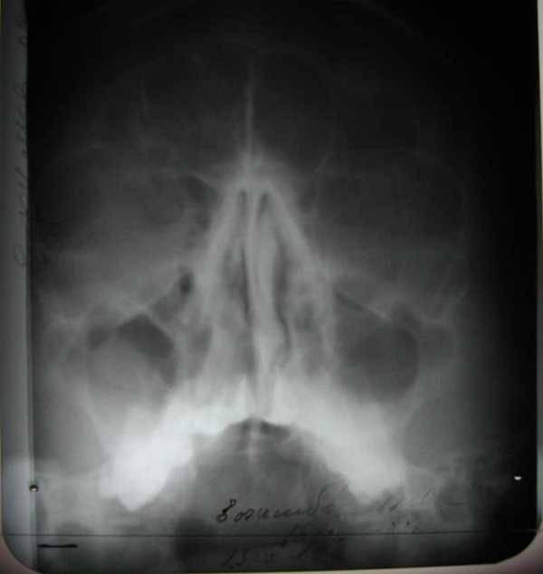Киста в области горла: причины, следствия и методы лечения