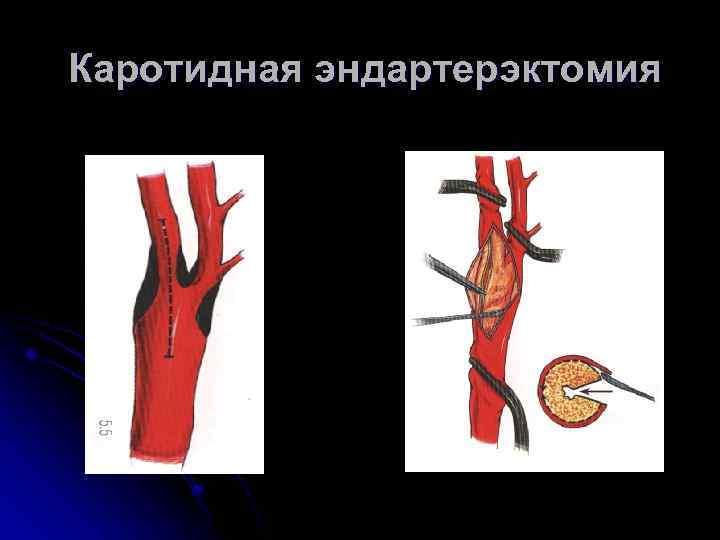 Эндартерэктомия сонных (каротидных) артерий