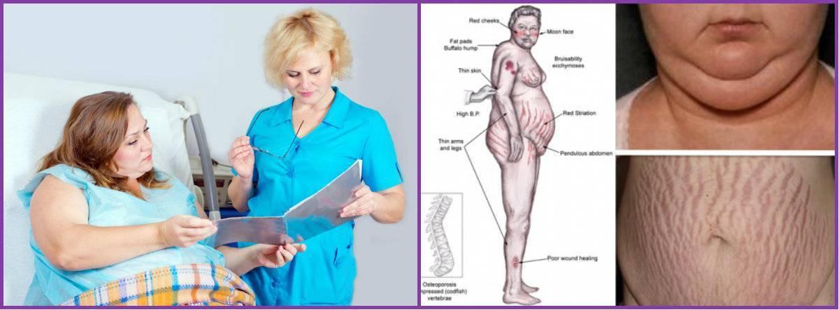 Что такое эндокринное ожирение, причины и лечение гормонального ожирения