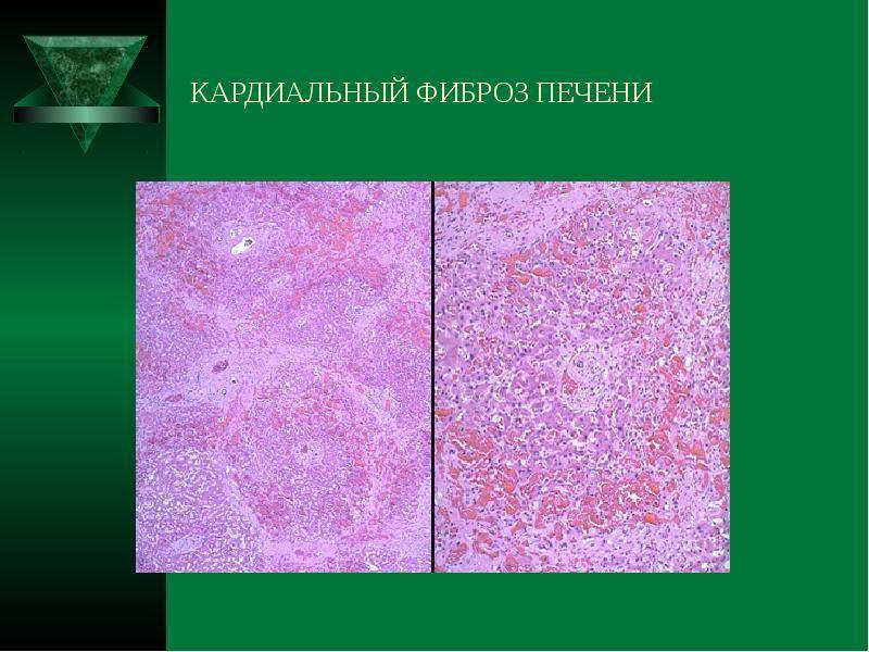 Кардиальный цирроз печени