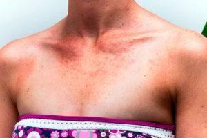 Симптомы, принципы лечения и профилактика солнечного дерматита
