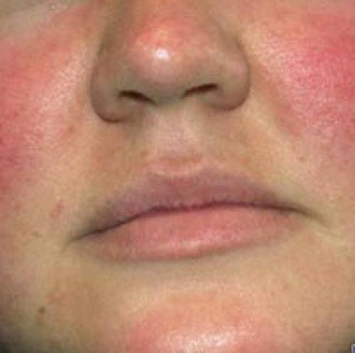 Красный нос, покраснение: причины, лечение, признаки заболеваний — симптомы