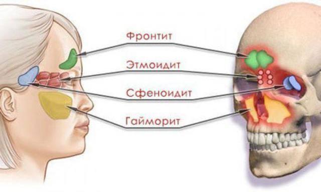воспаление лобных пазух симптомы
