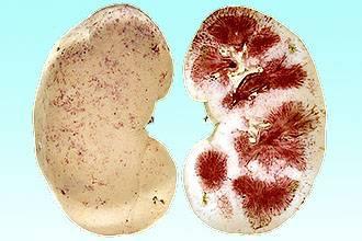 ангина на раннем сроке беременности
