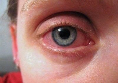 Покраснение глаз после душа. почему постоянно краснеют глаза? синдром компьютерных глаз