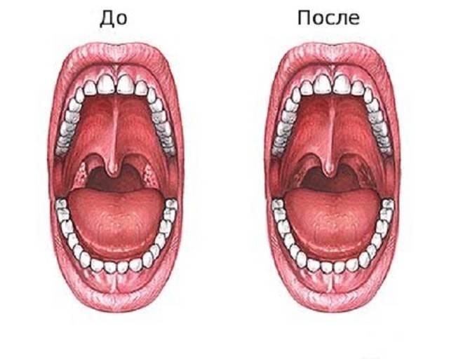 Удаление миндалин при хроническом тонзиллите у взрослых: показания и возможные осложнения