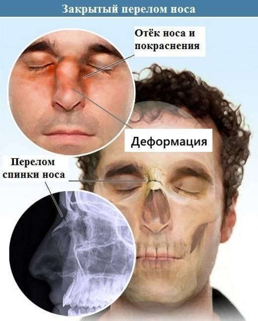 Ответственность за перелом носа: степень тяжести вреда здоровью и описание статьи ук рф