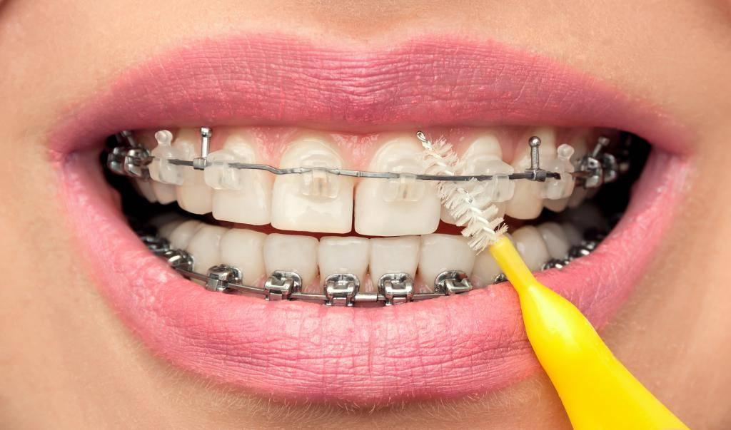 что делать если болят зубы от брекетов