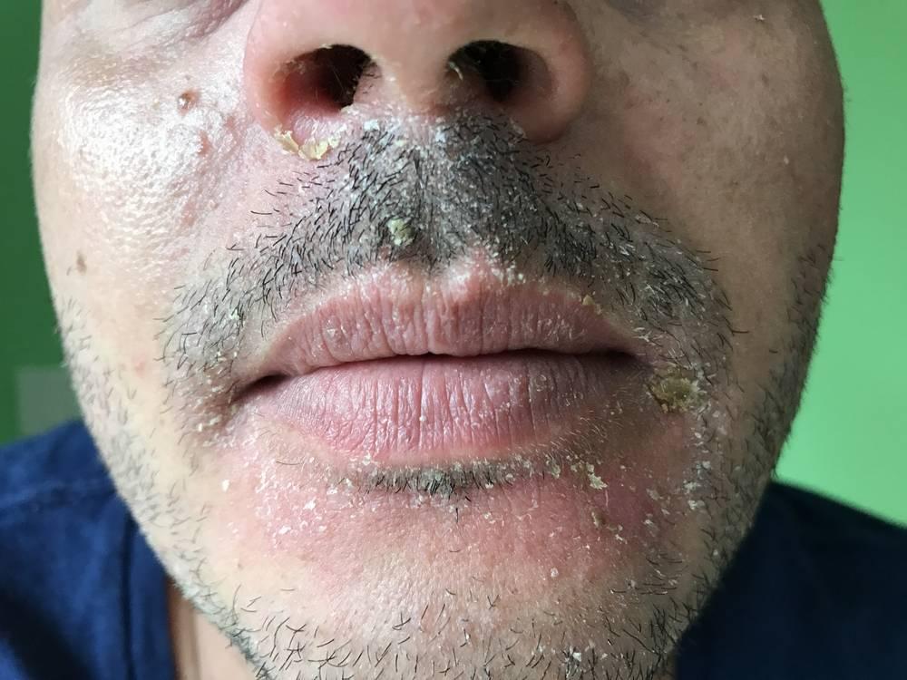 болячка в носу