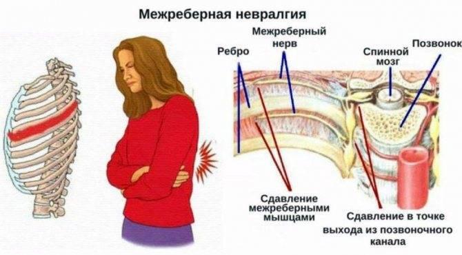 невралгия симптомы лечение народными средствами