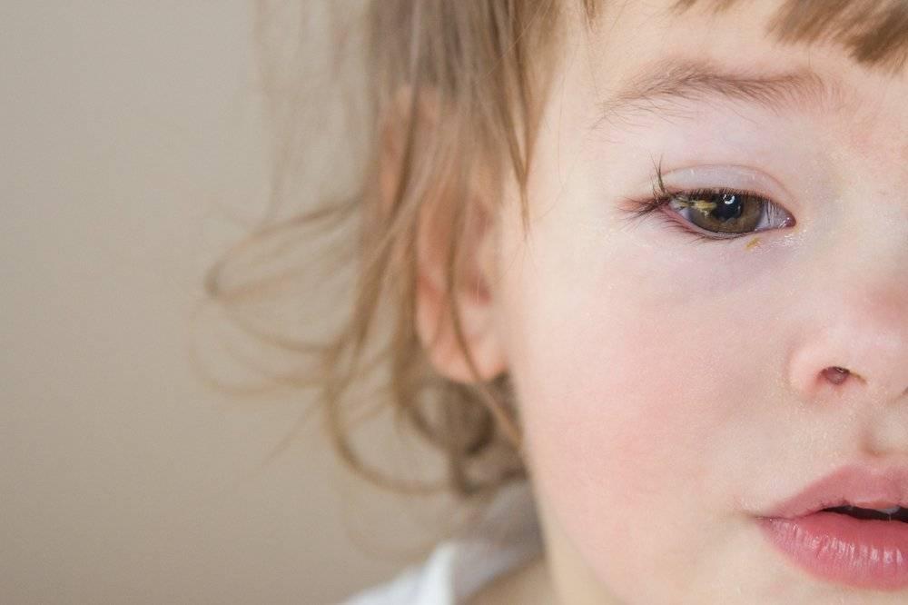 у ребенка опухли глаза