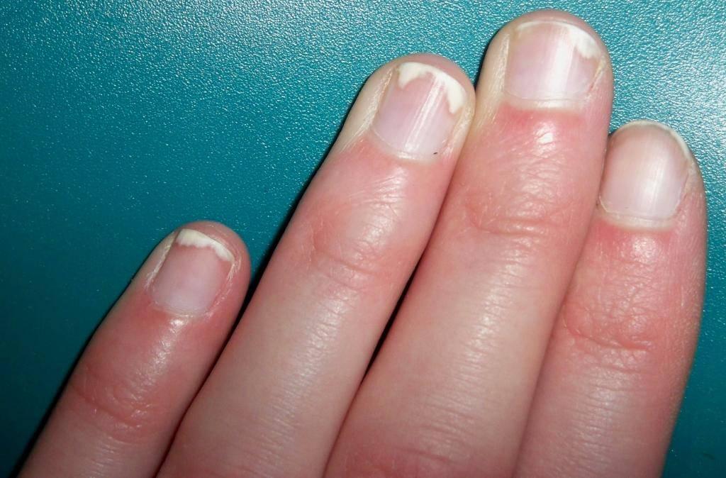 псориаз ногтей причины