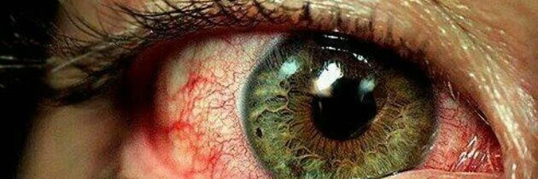 ожог сетчатки глаза лечение
