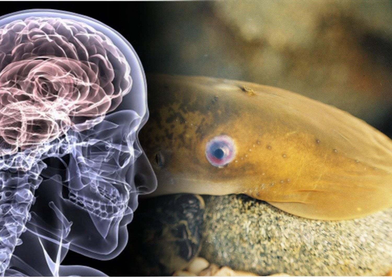 Паразиты – беда головного мозга
