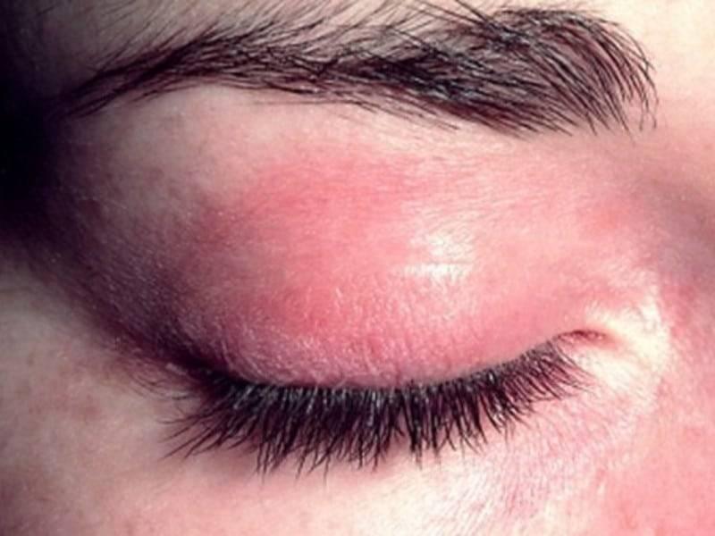 Вокруг глаз краснота и шелушение у детей и взрослых