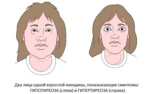 чем опасна щитовидная железа у женщин