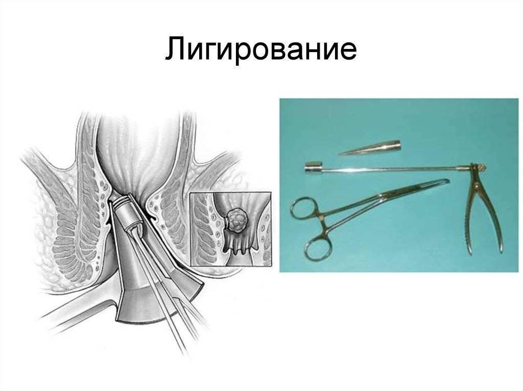 Латексное лигирование геморроидального узла кольцами