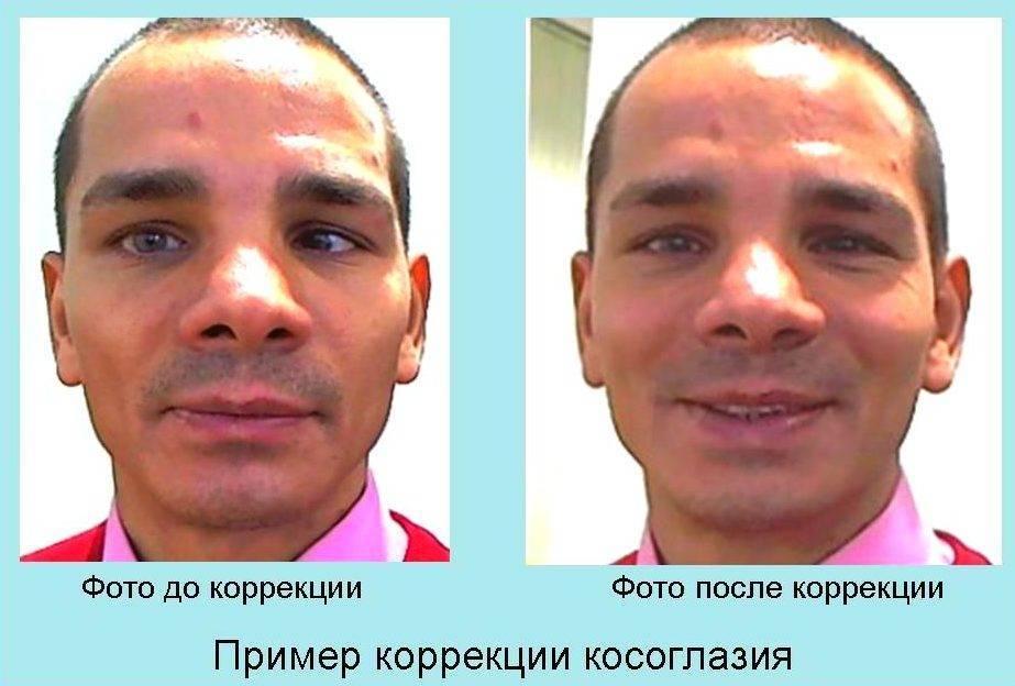 операция на косоглазие у взрослых