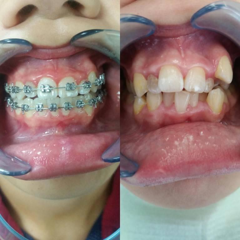 шатаются зубы после снятия брекетов