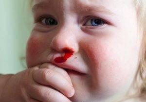 Ночью из носа пошла кровь причины. причины кровотечений из носа ночью
